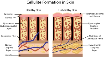 cellulite demo